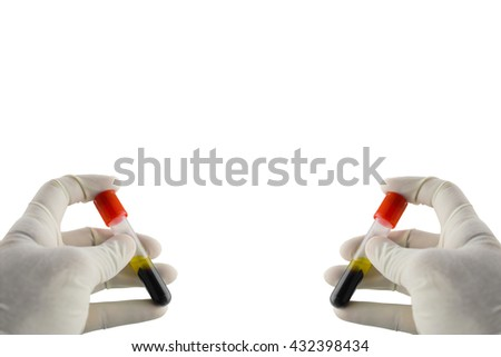 Specimen blood sample for immunology in laboratory,Specimen in Clot-blood tube blood collection,Lavender color blood sample collection tubes.(have clipping path) - stock photo