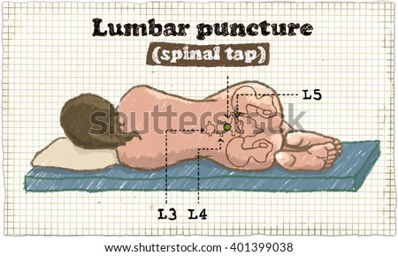 Spinal Puncture Illustration - stock photo