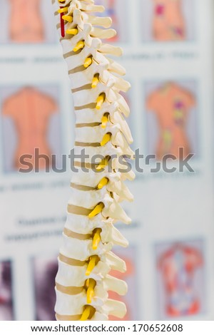 Spine Disc degenerated by osteophyte formation - stock photo