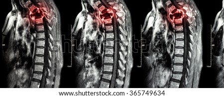 Spine metastasis ( cancer spread to thoracic spine ) ( MRI of cervical and thoracic spine : show thoracic spine metastasis and compress spinal cord ( Myelopathy ) ) ( sagittal plane ) - stock photo