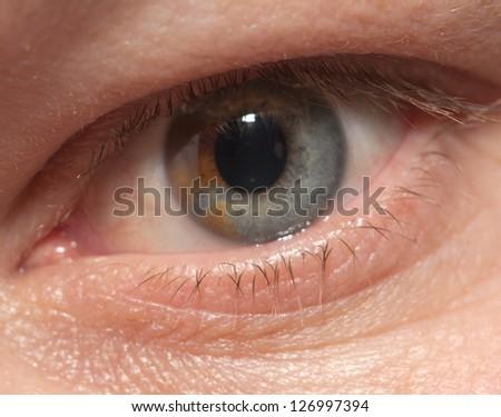 spot in the eye. macro - stock photo
