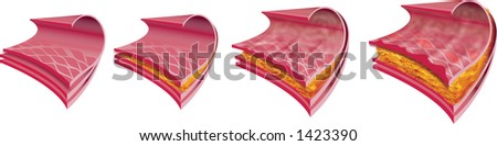 Stages of cardiovascular disease (atherosclerosis), high resolution JPEG - stock photo