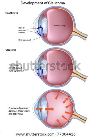 Angle Closure Glaucoma Glasses Prescription