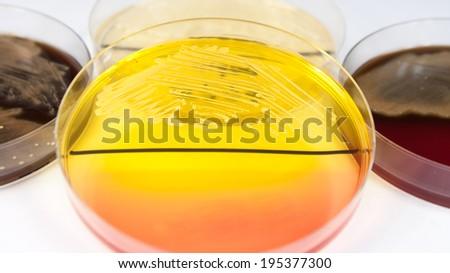 Staphylococcus aureus bacterium on petri dish - stock photo