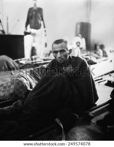 Starving inmate of Gusen concentration camp in Austria after liberation. The Mauthausen-Gusen concentration camp complex was the largest Nazi concentration camp in Austria during World War 2. - stock photo