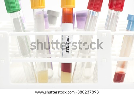 STD blood analysis collection tube with test rack. Labels are created by the photographer.