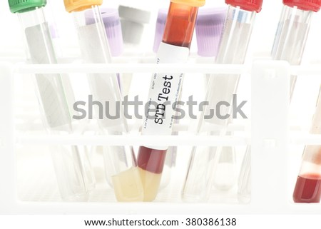 STD blood analysis collection tube with test tube rack. Labels are created by the photographer. - stock photo