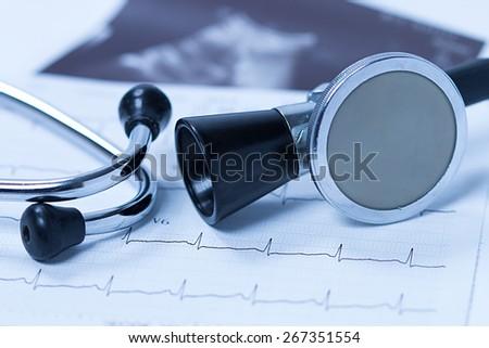 Stethoscope And Electrocardiogram - stock photo