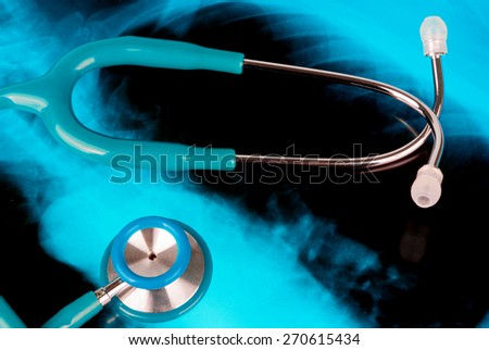 Stethoscope on a Xray photo of lungs - stock photo