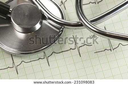 Stethoscope on electrocardiogram paper, closeup shot, local focus
