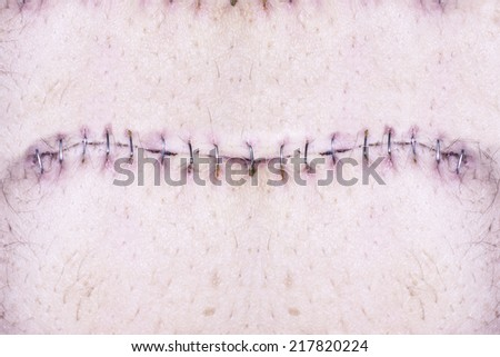 stock images similar to id 108133865 stitches on arm after stock images similar to id 108133865 stitches on arm after