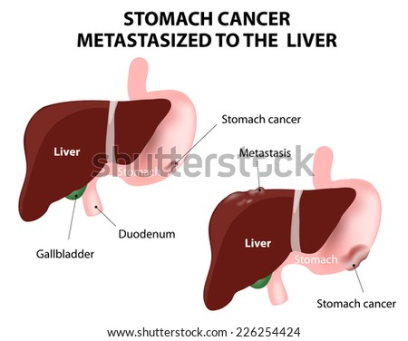 Stomach cancer Metastasized to the  liver. The spread of a cancer from one organ to another. Mets. - stock photo