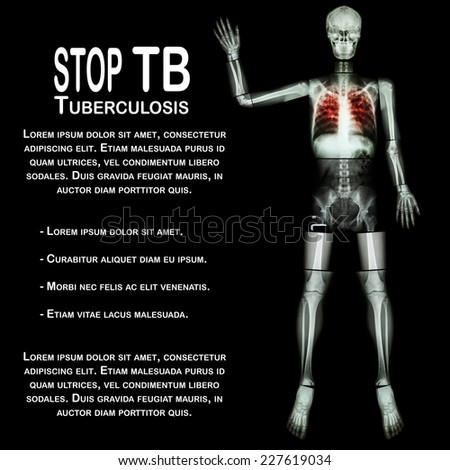 Stop TB(Tuberculosis) (Human bone raise hand) (Whole body  :head skull neck spine shoulder arm elbow forearm wrist hand finger thorax chest heart rib back abdomen pelvis hip thigh knee leg ankle foot) - stock photo