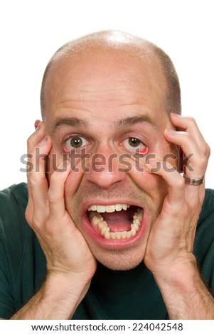 Stressed out man has reached his limit and claws at his face in distress. - stock photo