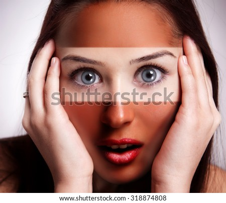 Sunburn concept - worried woman with tan over half of face - stock photo