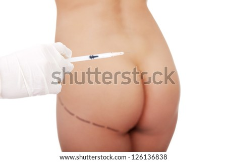 Surgeon hand in glove holding syringe, against buttocks with cosmetic surgery lines - stock photo