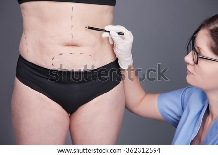 Surgeon, liposuction, body.cellulite, stretching. Overweight, obesity, fat woman, fat belly, hips and excess weight - stock photo