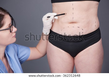 Surgeon, liposuction, body.Overweight, obesity, fat woman, fat belly, hips and excess weight. cellulite, stretching - stock photo