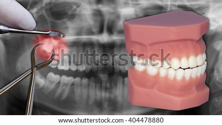 surgery extraction simulation, over dental scan - stock photo