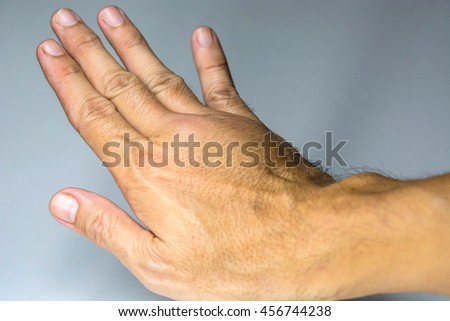 swollen male hand - stock photo