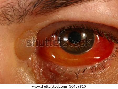 Swollen Eye Stock Images, Royalty-Free Images & Vectors | Shutterstock