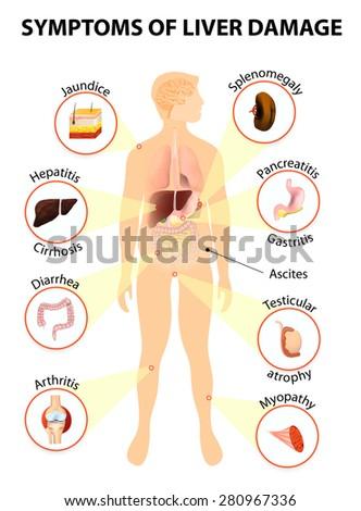 Symptoms Liver Damage Human Silhouette Internal Stock