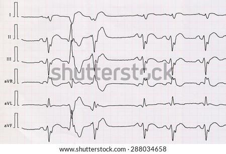 Tape ECG with acute period macrofocal widespread anterior myocardial infarction and pair ventricular premature beats  - stock photo