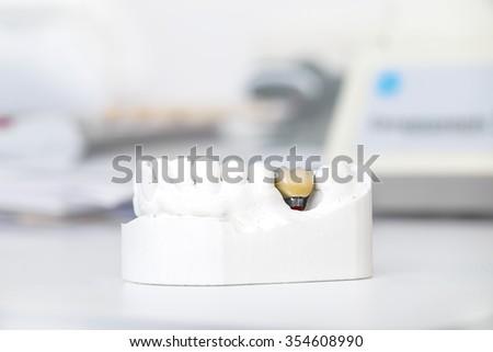 Technical shots of model on a dental prothetic laboratory  - stock photo