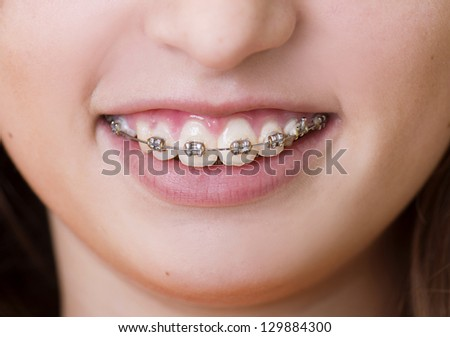 Teenage girl with the braces on her teeth is smiling - stock photo