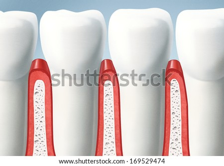 Teeth and gums, caries - stock photo