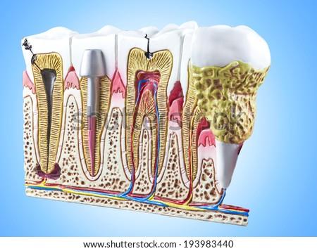 Teeth, dental section model. - stock photo