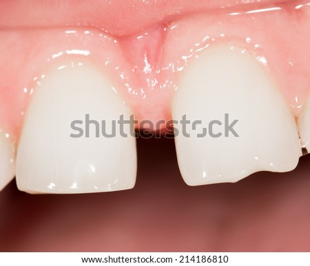 teeth in the mouth. close-up - stock photo