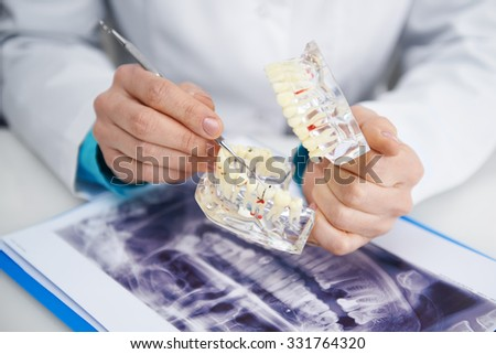 Teeth inspection. Health care. Woman doctor analyzing tooth caries on teeth model and x-ray.  - stock photo