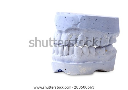 teeth mold  isolated on white background