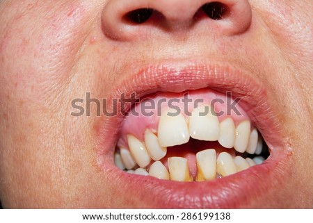 teeth problems - stock photo