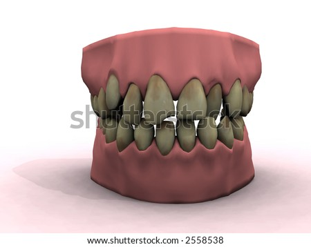 teeth show bad decay and ugly coloring