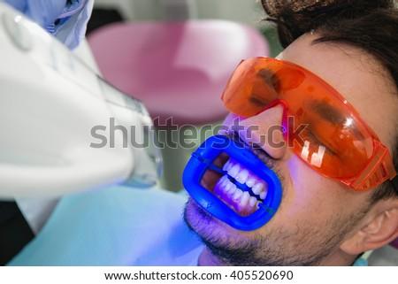 Teeth whitening procedure - stock photo