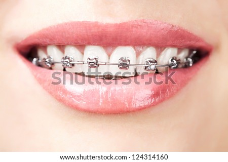 teeth with braces - stock photo