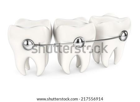 Teeth with braces isolated on white background. 3d rendering image - stock photo