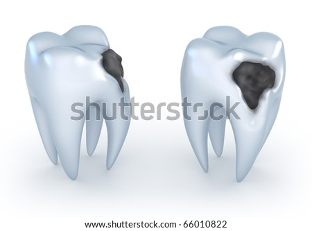 Teeth with caries, 3D image. - stock photo