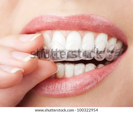 teeth with whitening tray - stock photo