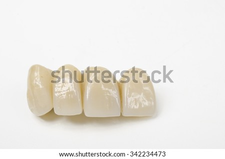 temporary bridge, resin veneers