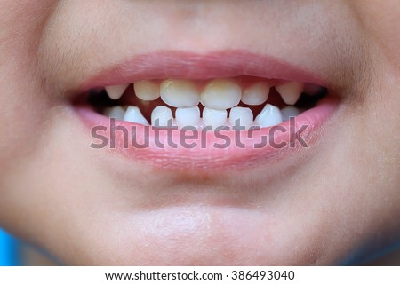 The baby's mouth with a milk tooth - stock photo