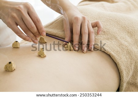 The back of the woman and moxibustion  - stock photo