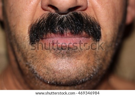The black mustache of an unshaven azer man with a red mole on the lower lip.