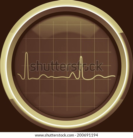 The cardiogram on the screen of a retro cardiomonitor in brown tones, background - stock photo