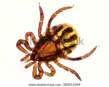 The castor bean tick (Ixodes ricinus) under the microscope. Ugly tick with white background close up. - stock photo