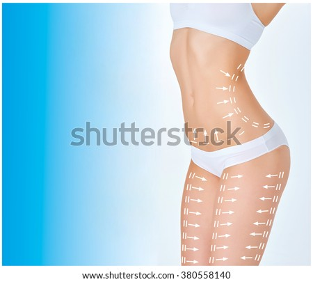 The cellulite removal plan. White markings on young woman body  - stock photo