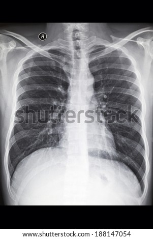 The chest X-ray film - stock photo