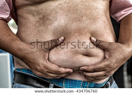 The Dangers of Belly Fat., Obese Man in Jeans Squeeze the Belly Fat., Obese Man is more likely to Clog arteries and diabetes. - stock photo